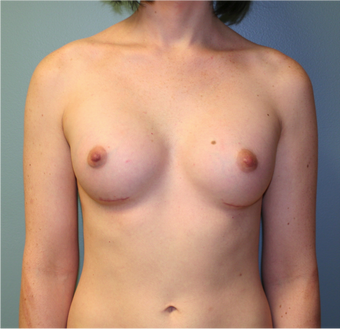 Young Woman Undergoes Breast Augmentation as part of Male to Female Gender Transformation after 1190955