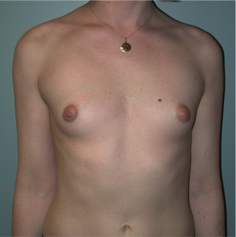 Young Woman Undergoes Breast Augmentation as part of Male to Female Gender Transformation before 1190955