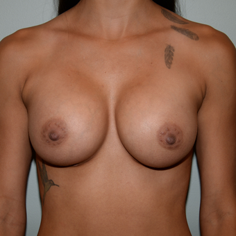 24 year old woman treated with Breast Implants after 3763159