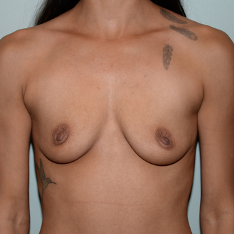 24 year old woman treated with Breast Implants before 3763159