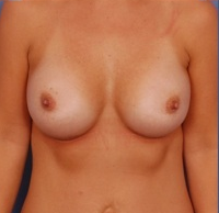 Breast Augmentation Silicone Implants