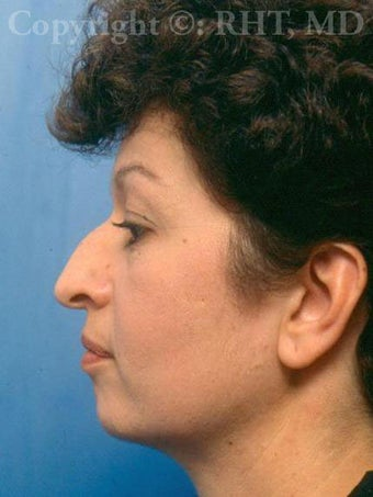 Rhinoplasty; chin implant before 259385
