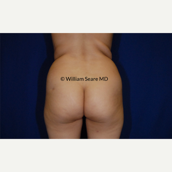 35-44 year old woman treated with Fat Transfer before 3777840