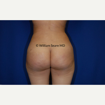 35-44 year old woman treated with Fat Transfer after 3777840