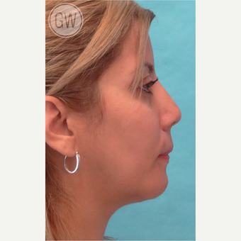 25-34 year old woman treated with Nose Surgery after 3477990