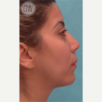 25-34 year old woman treated with Nose Surgery before 3477990