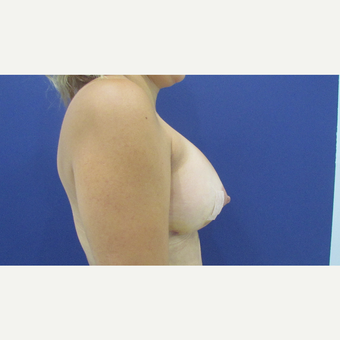 25-34 year old woman treated with Breast Implants after 3663899
