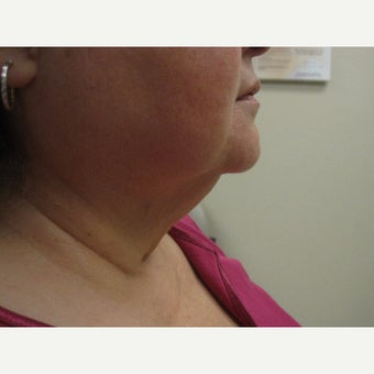55-64 year old woman treated with direct neck lift