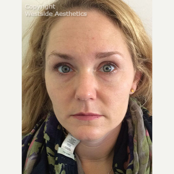 Non Surgical Under Eye Bag Treatment after 2960550