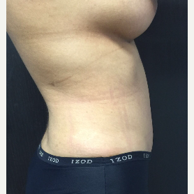 25-34 year old woman treated with Tummy Tuck after 3400470