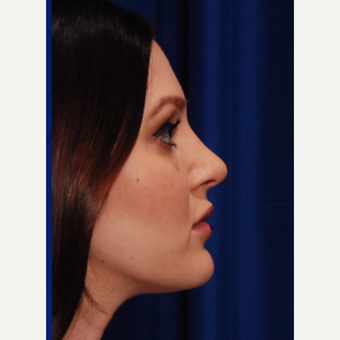 25-34 year old woman treated with Rhinoplasty after 3500296
