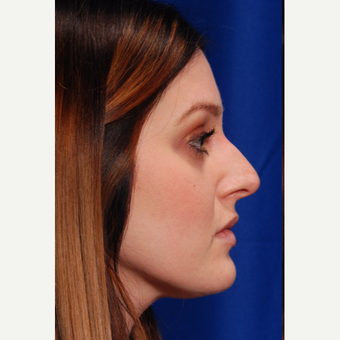 25-34 year old woman treated with Rhinoplasty before 3500296