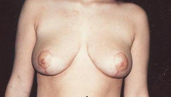 Breast reduction after 203546