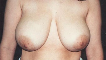 Breast reduction before 203546