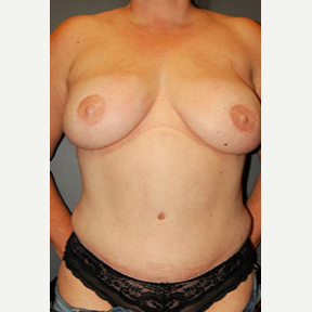Breast reconstruction with bilateral DIEP flaps after 3570284