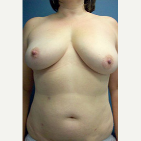 Breast reconstruction with bilateral DIEP flaps before 3570284