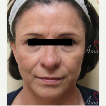 45-54 year old woman treated with Restylane before 3835964