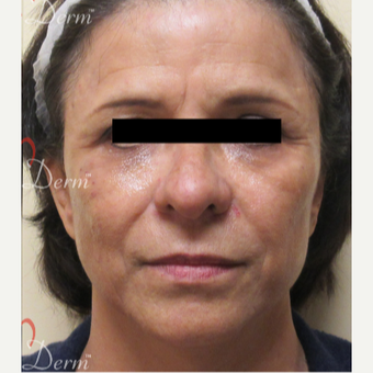 45-54 year old woman treated with Restylane after 3835964