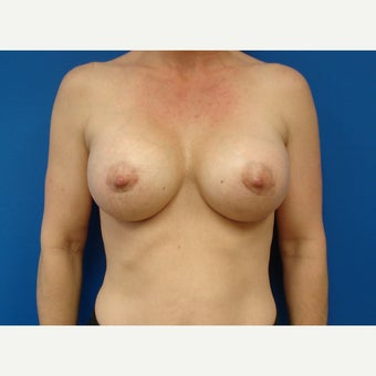 35-44 year old woman treated with Breast Implants after 2213389
