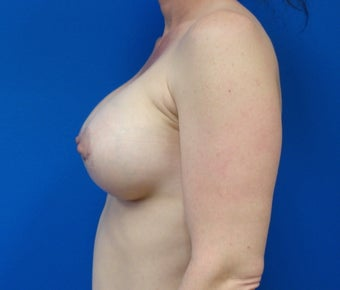 35-44 year old woman treated with Breast Implants 2213389