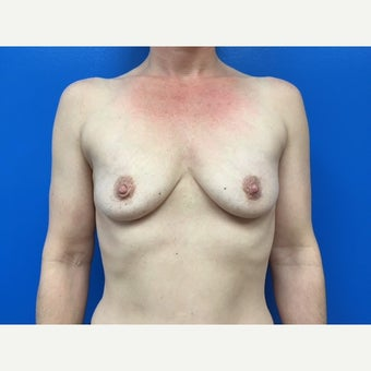35-44 year old woman treated with Breast Implants before 2213389