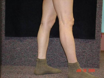 Calf Implants before 692868