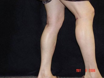 Calf Implants after 692868