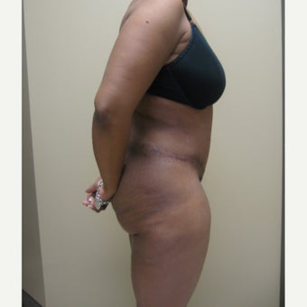 45-54 year old woman treated with Tummy Tuck after 2486097