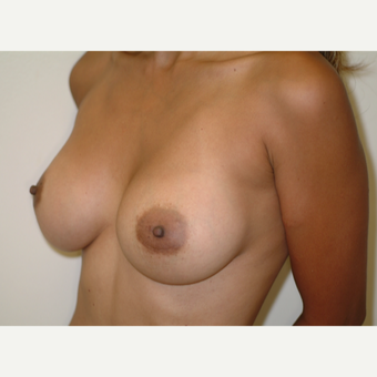 25-34 year old woman treated with Breast Implants after 3743012
