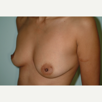 25-34 year old woman treated with Breast Implants before 3743012