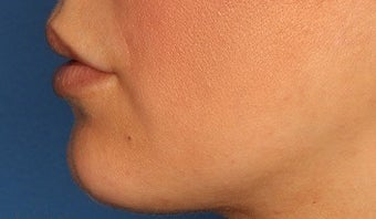25-34 year old woman treated with Lip Augmentation before 3711751