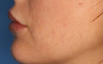 25-34 year old woman treated with Lip Augmentation after 3711751
