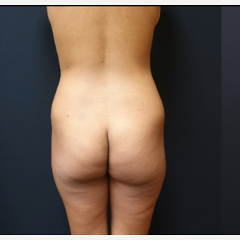 25-34 year old woman treated with Butt Lift before 3731802