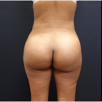 25-34 year old woman treated with Butt Lift after 3731802