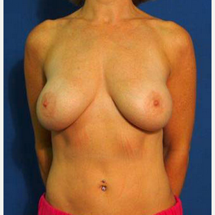 Breast Fat Transfer after 1843106