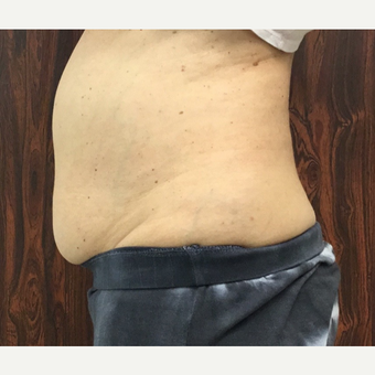 55-64 year old woman treated with SculpSure before 2851879