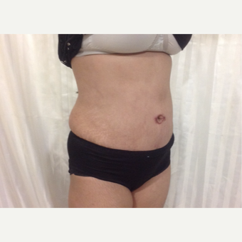 35-44 year old woman treated with Tummy Tuck after 3444469