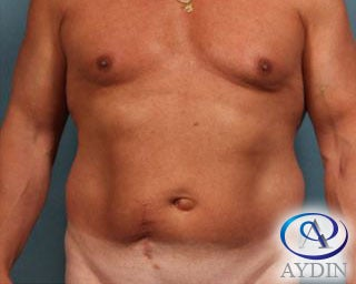 54 year old man treated with Liposuction before 3253481