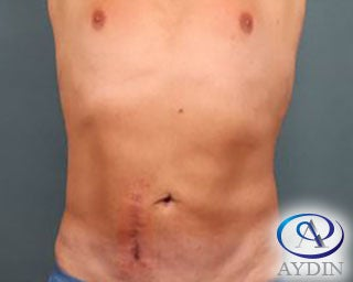 54 year old man treated with Liposuction after 3253481