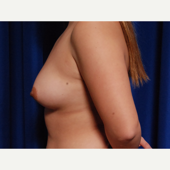 25-34 year old woman treated with Breast Fat Transfer before 3731827