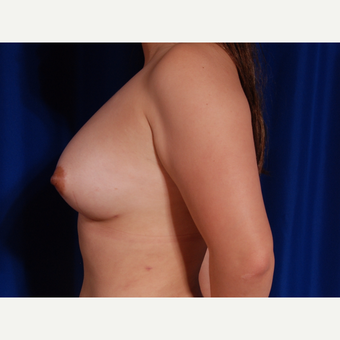 25-34 year old woman treated with Breast Fat Transfer after 3731827