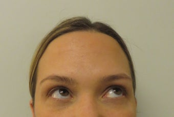 34 Year Old Female Treated with Botox for frown (brow), forehead and crows feet lines and wrinkles 1282592