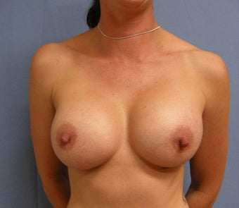 36 year old with small deflated breasts after 1016089