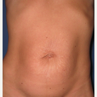 35-44 year old woman treated with Tummy Tuck before 3619091