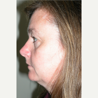 45-54 year old woman treated with Facelift before 3154207