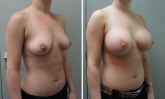 Breast Augmentation 450cc after 1271619
