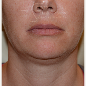 35-44 year old woman treated with Chin Liposuction before 3811303