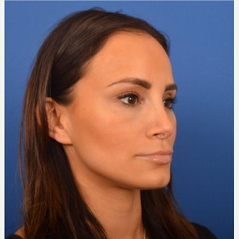Female patient 3 weeks post Revision Rhinoplasty 1957049