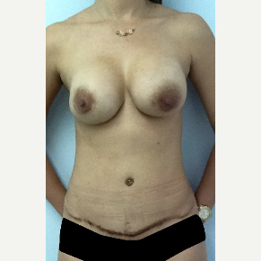35-44 year old woman treated with Breast Lift with Implants before 3134746