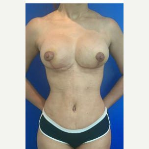 35-44 year old woman treated with Breast Lift with Implants after 3134746